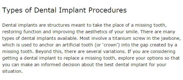 Types of Dental Implant Procedures