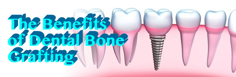 The Benefits of Dental Bone Grafting in San Diego
