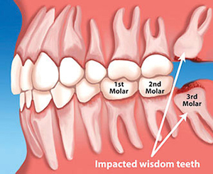 Tooth Extractions & Wisdom Teeth