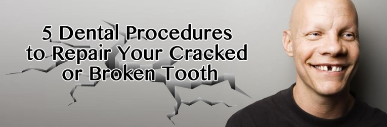 5 Dental Procedures to Repair Your Cracked or Broken Tooth in Poway CA