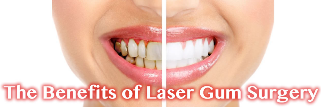 The Benefits of Laser Gum Surgery in Poway CA