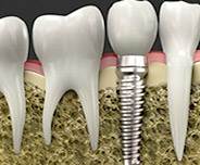 Minimally Invasive Dental Implants