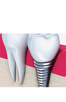 Complimentary Dental Implant Consultation. Learn more.