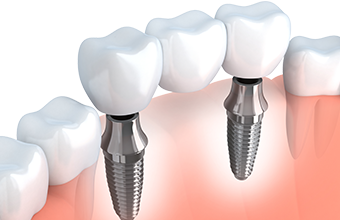 Solutions for Missing Teeth