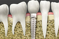 Cosmetic Dentistry - Dental Implants