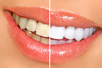 Cosmetic Dentistry - Teeth Whitening